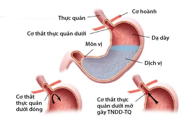 Cơ chế trào ngược dạ dày thực quản